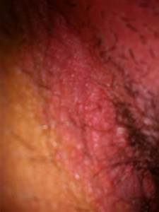 Skin Rashes in Children on Face in Adults on Hands on Arms ...