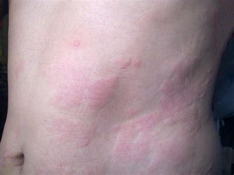 Stress Rash Allergy | Mungfali