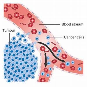 How Melanoma Spreads