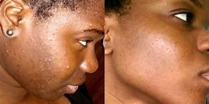Video Bouton Noir : comment avoir une peau nette r duire les boutons et les taches 5 conseils youtube ~ Medecine-chirurgie-esthetiques.com Avis de Voitures