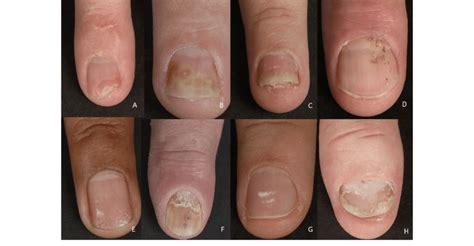 nail manifestations   nail psoriasis nail bed