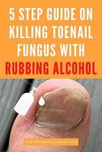 Rubbing Alcohol For Toenail Fungus  The Complete Guide In