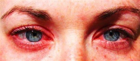 allergie au pollen 11 p 39 tits remèdes efficaces pour