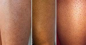 This is How You Can Get Rid of Dark Pores on Legs NATURALLY