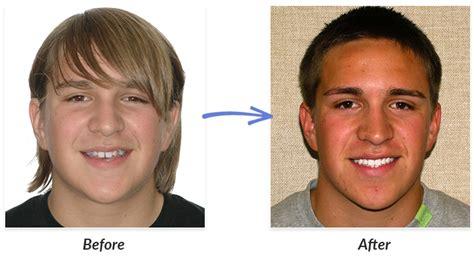 Before & After Braces Photos  Delurgio & Blom Orthodontics