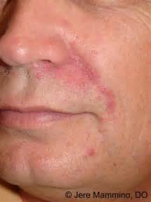... Dermatitis - American Osteopathic College of Dermatology (AOCD  Dermatitis Dermatology