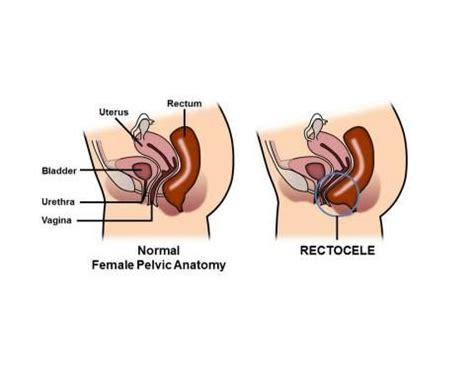 58 best rectocele repair images on pinterest bladder