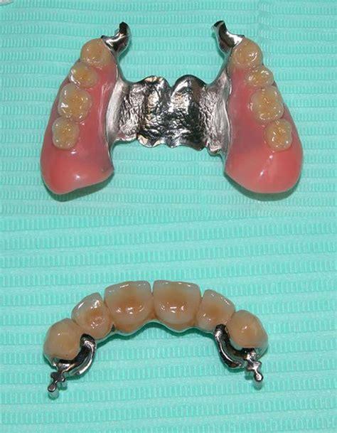 protesi mobile parziale  scheletrata studio dentistico