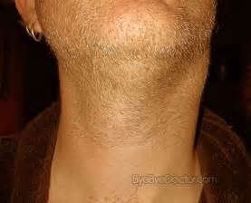 Lymph Nodes Swollen Neck Glands