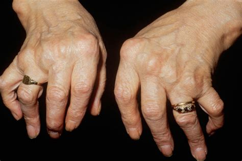 Types Of Arthritis. Boston Security Companies Vw Repair San Diego. Student Proofreading Services. Top Insurance Companies In Florida. Early Contract Termination Verizon. How Can I Become A Counselor. Outlook Templates 2010 Rural Housing Mortgage. Study Abroad Internship Programs. Voip Call Center Solution New Orleans Roofing
