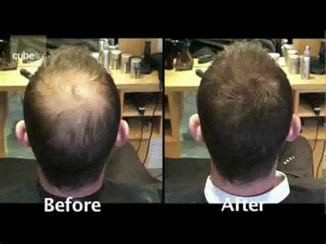 Mens Hair Loss product solution from Toppik - YouTube