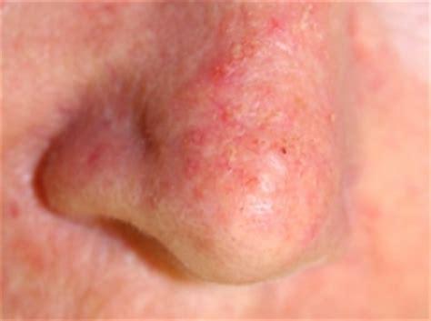melanoma skin cancer dorset dermatology clinics