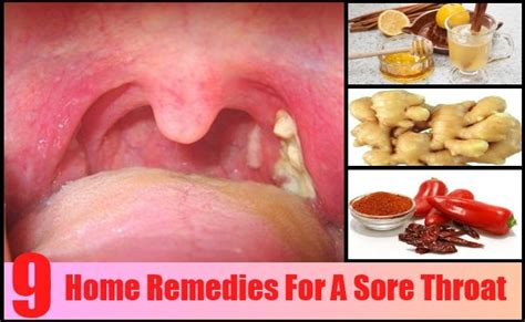 9 Top Home Remedies For A Sore Throat Lakers Bedroom White Rug Sets Ashley Furniture Renovation Bathroom Mirror Ideas For A Small Design Online Ikea Country Set