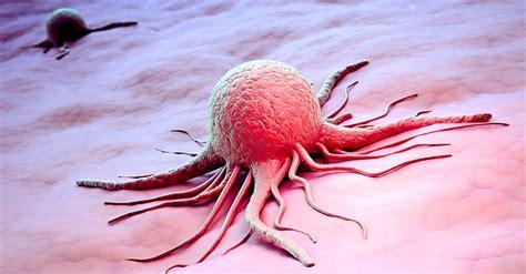 brustkrebs symptome vorbeugung anzeichen erblicher