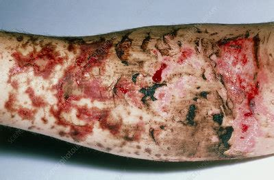 Third degree burns on arm caused by hot pitch - Stock ...