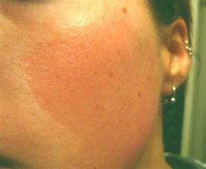 Keratosis Pilaris - Pictures, on Face, Symptoms, Treatment
