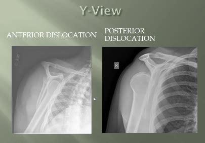 Shoulder Dislocation Anterior Posterior Y-view Scapular XR ...