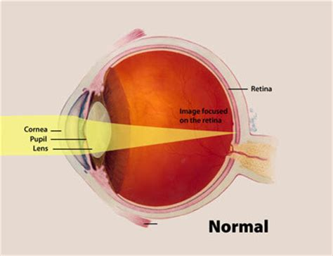 eye sensitive to light photophobia and light sensitivity guide axon optics