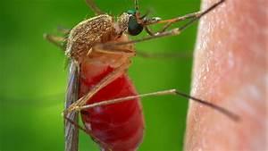 Hausmittel Gegen Mückenstiche : diese sieben hausmittel helfen was gegen m ckenstiche wirklich hilft welt ~ Watch28wear.com Haus und Dekorationen