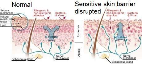 skincare tips sensitive skin skin