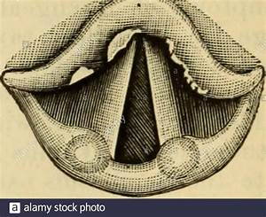 Secondary Syphilis High Resolution Stock Photography And