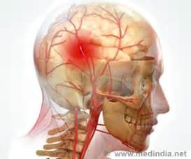 Brain Stroke Affects One-fifth of Indians At Age 40 and Below