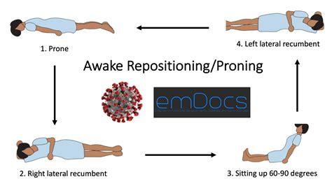 emDOCs.net – Emergency Medicine EducationCOVID-19: Awake ...