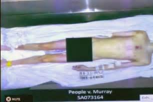Michael Jackson Death Autopsy