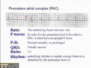 ECG: Premature Atrial Complex - YouTube