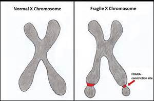 ... UT Southwestern Studies on Fragile X Noise Sensitivity BioNews Texas Fragile X Syndrome