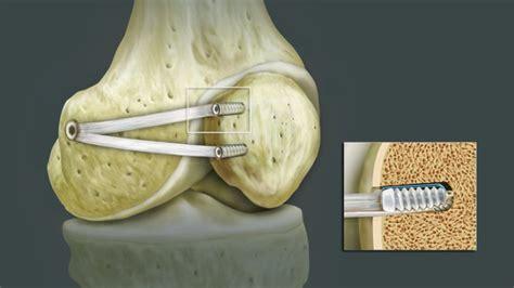 medizinischer zuegel fuer weiche knie gesundheit und medizin
