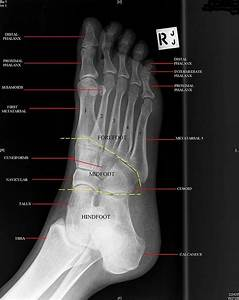 Anatomy Musculoskeletal X Ray
