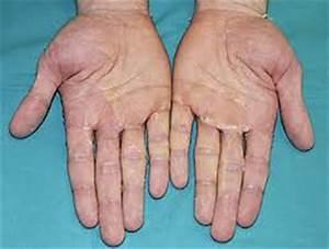 Kawasaki Disease Pictures | New Health Advisor