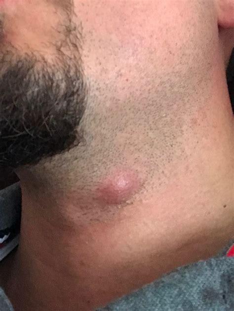 warum schwellen meine hals lymphknoten seit  monaten