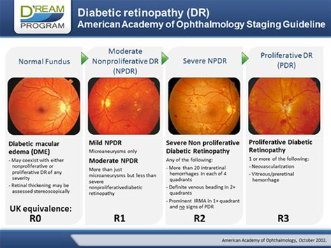 current challenges  diabetic retinopathy early