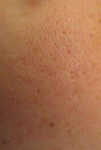 verstopte porien voorhoofd