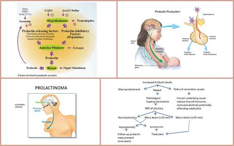 Hyperprolactinemia Diagnosis And Treatment Jillas