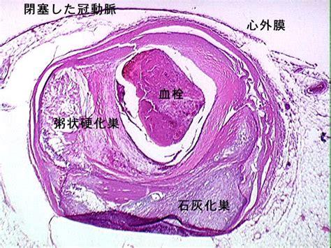 コレステリン (コレステリン) - Japanese-English Dictionary - JapaneseClass.jp