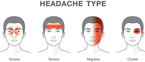 Migraine Or Tension? Know The Different Types Of Headaches