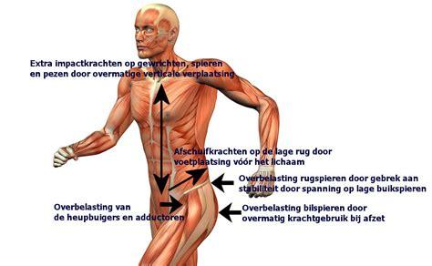 rugpijn spieren