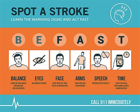 Stroke Signs and Symptoms Chart