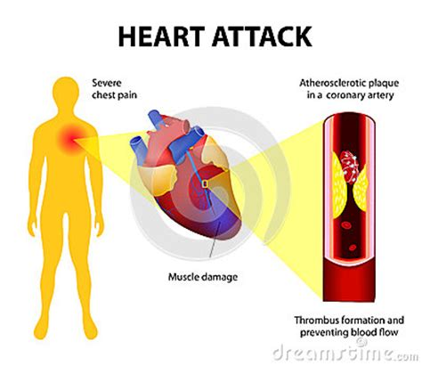 heart attack stock vector image