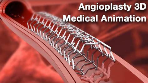 Angioplasty Medical Animation Youtube