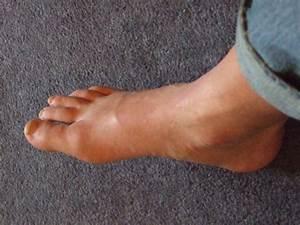 Chris U0026 39 S Blog  Gout