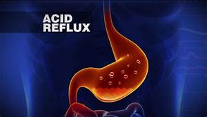 President Obama Diagnosed With Acid Reflux Video