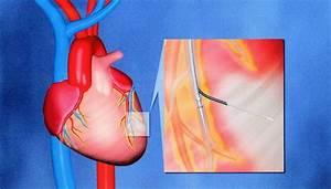Percutaneous Transvenous Cellular Cardiomyoplasty  A Novel