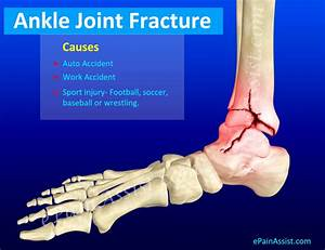 Ankle Joint Fracture