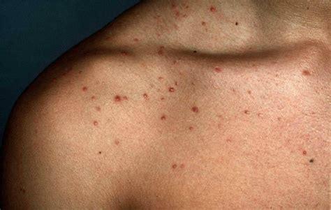 mallorca acne acne aestivalis huidartscom