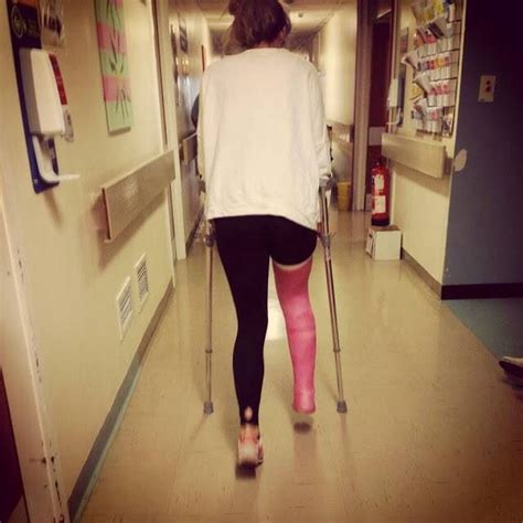 leg cast llc cast slc llc cast leg cast and legs