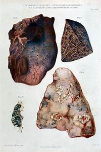 File W  Fox  Pathological Anatomy Of The Lungs  Cancer